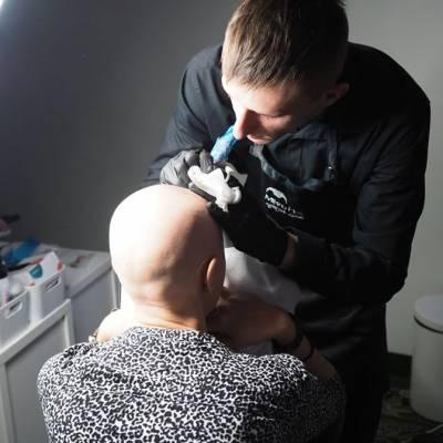pigmentacja głowy
